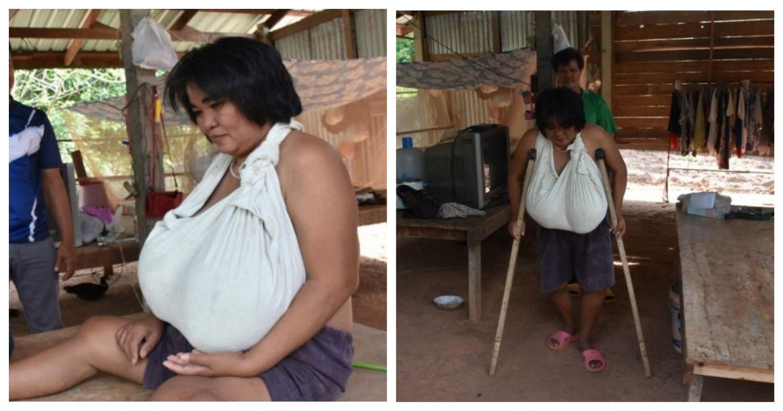 Жительница Таиланда мучается от внезапно выросшей огромной груди