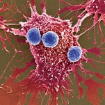 New Weapons Against Cancer: Millions of Bacteria Programmed to Kill