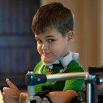 C.D.C. Investigates Rare Paralysis in Children
