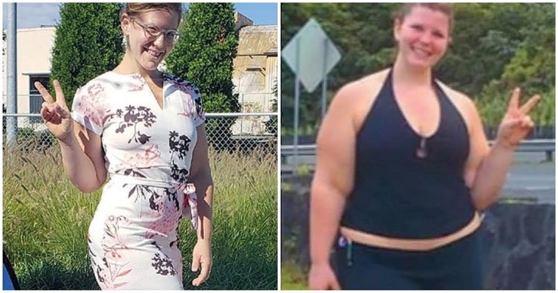 «Синдром галифе». Американка смогла похудеть на 30 килограммов