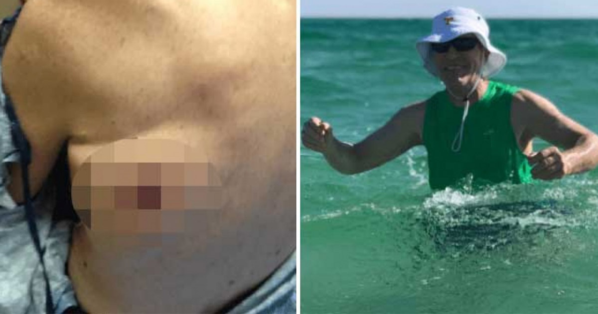 Американец не пережил купания в море из-за бактерий
