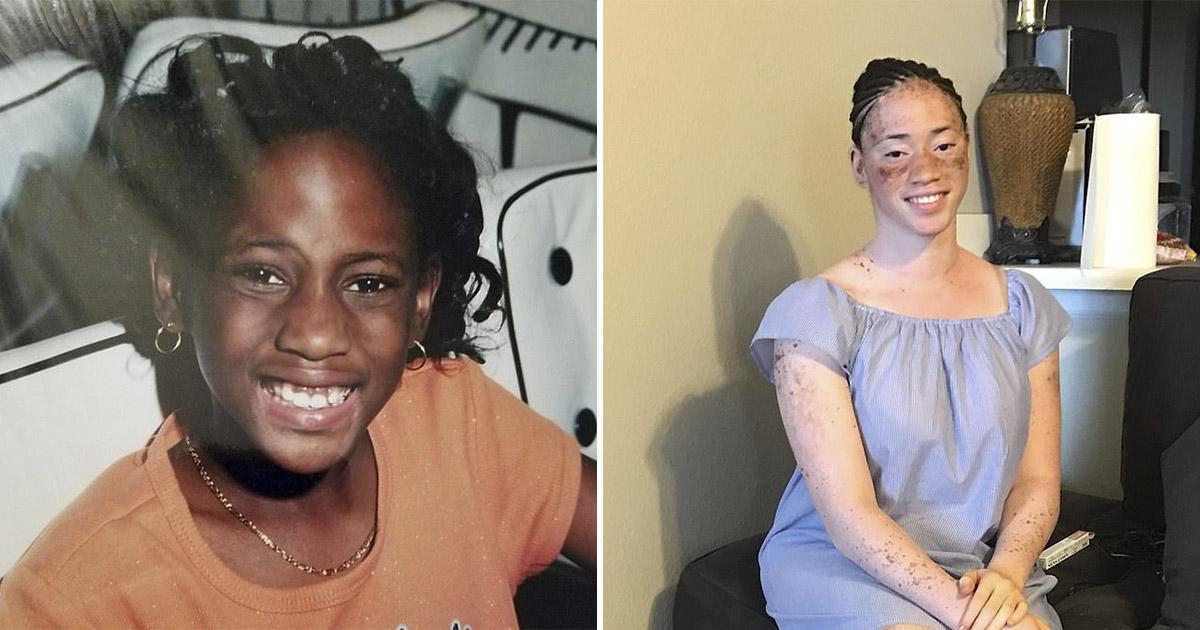 Сменила диету - сменила расу. Как темнокожая девушка стала белой