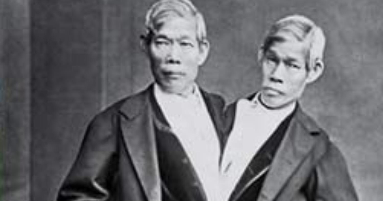 «Сиамские близнецы». История братьев, которые дали название феномену