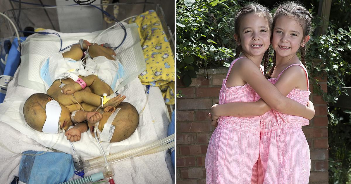 Сиамские близнецы выжили, несмотря на прогнозы врачей