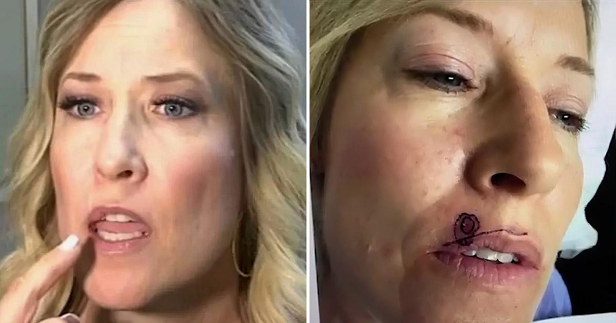 Фото Обычное пятно на лице женщины таило в себе страшную угрозу