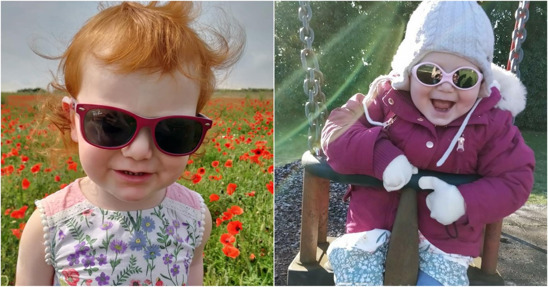 Редкое заболевание вынудило малышку носить солнцезащитные очки