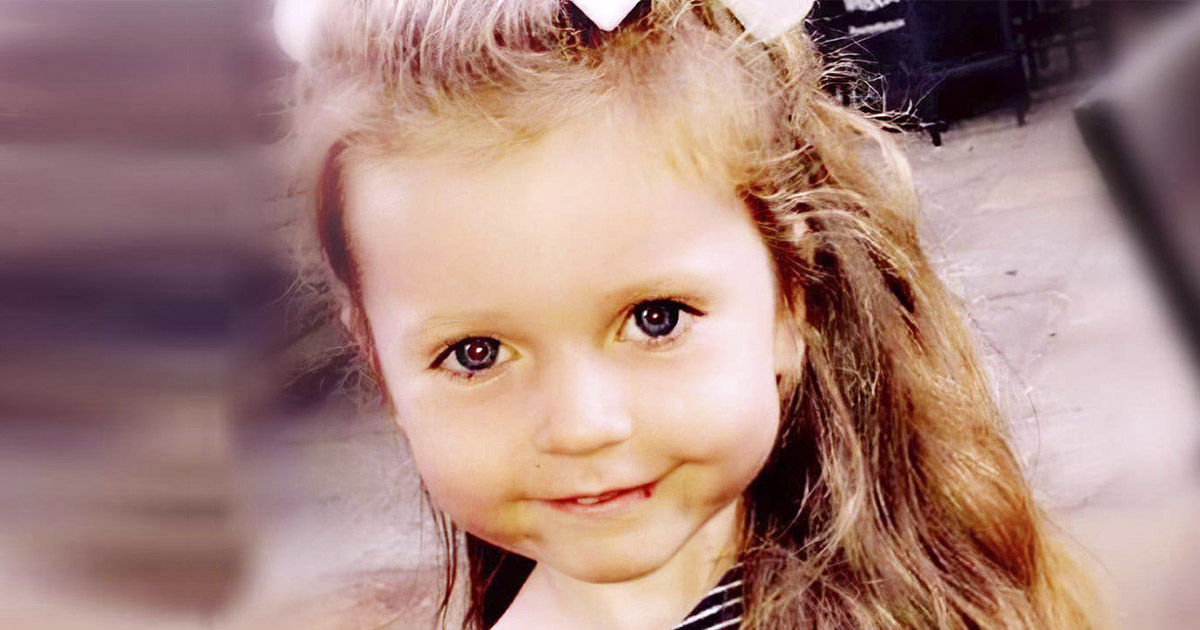 Фото Мать спутала опухоль дочки с аллергией, а затем отказалась от услуг врачей