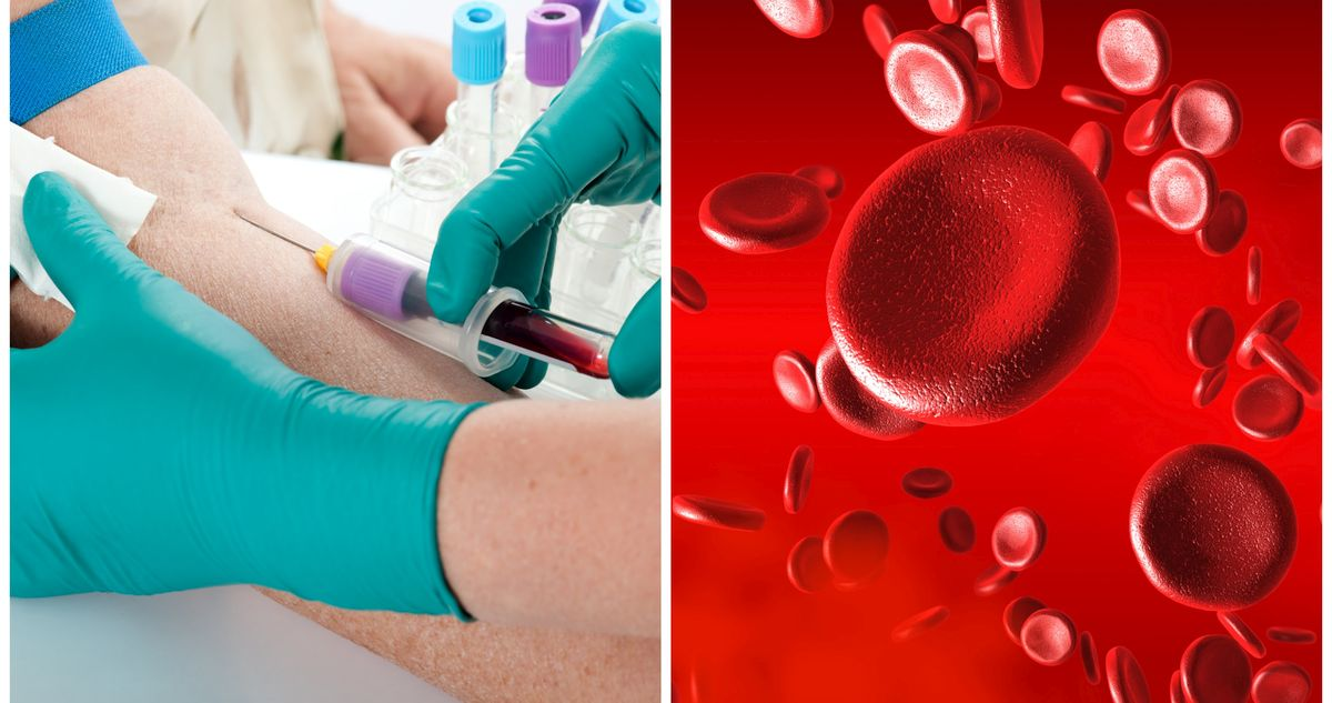 Ферритин - что это? Анализ крови на ферритин, норма железа и низкий ферритин