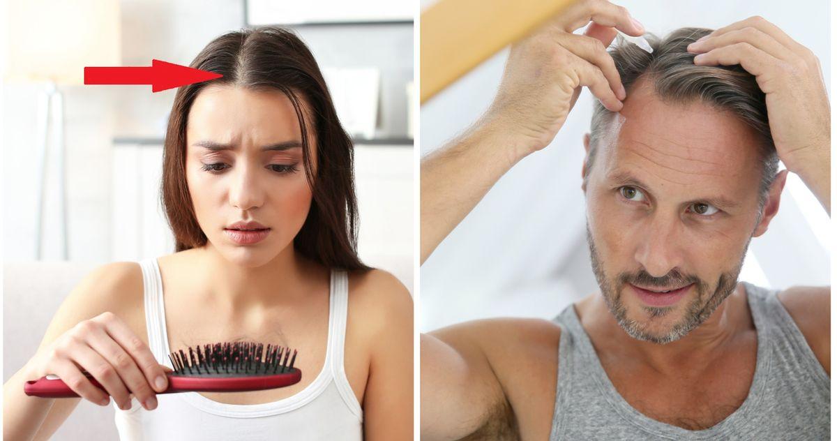 Почему выпадают волосы. Средства для роста волос, лечение облысения