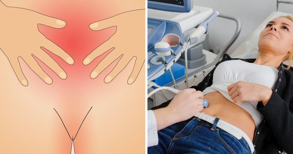 Что такое эндометрий. Полип эндометрия, причины и лечение