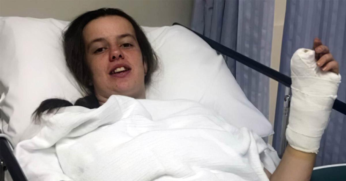 Фото Хирурги-изуверы. Девочке пришили палец ноги вместо большого пальца руки