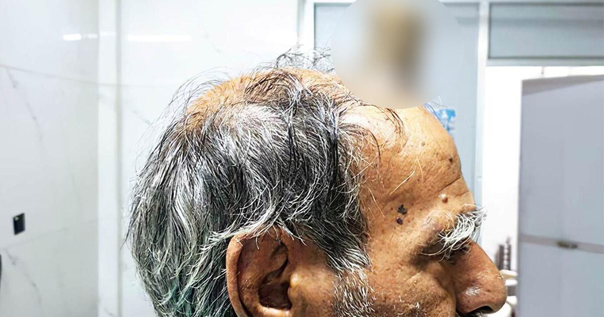 У индуса на голове вырос 10-сантиметровый «дьявольский» рог