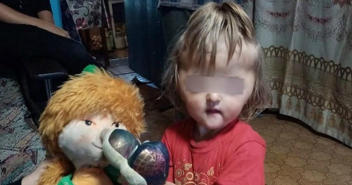 Власти отреагировали на недопуск в детсад ребенка с деформированным лицом