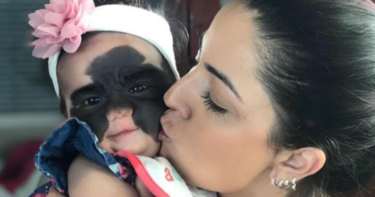 В России прооперируют девочку из США с редкой болезнью на все лицо