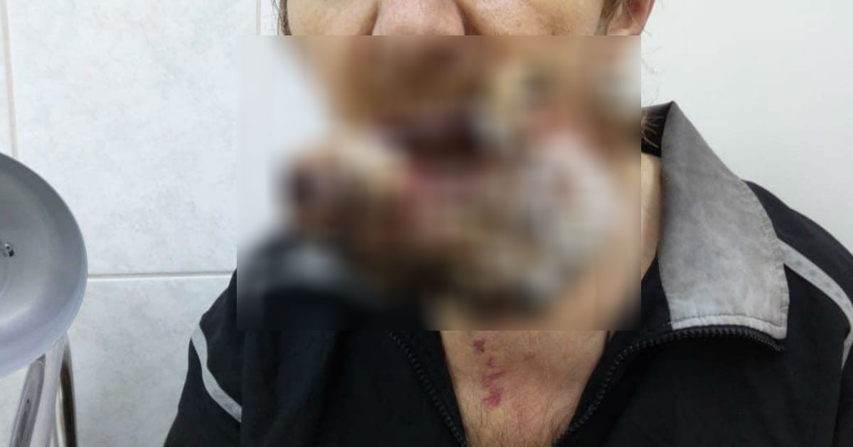 Сибиряк, лечивший рак молитвами, вернулся из тайги с огромной опухолью (18+)