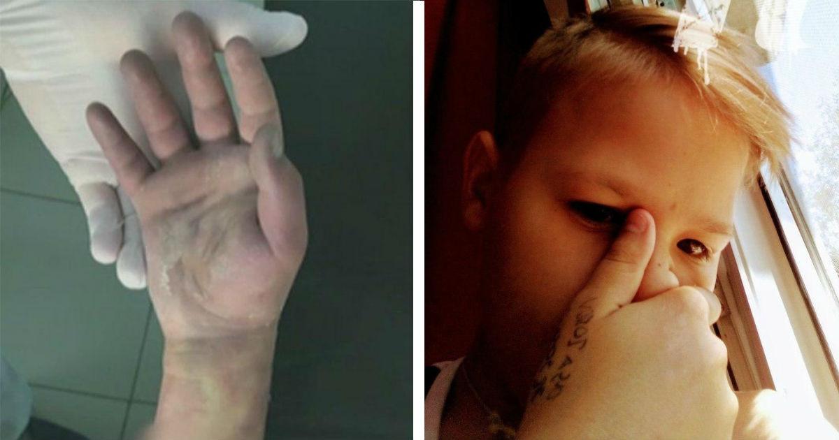 Фото Признана вина врачей, из-за которых 11-летний ростовчанин потерял руку