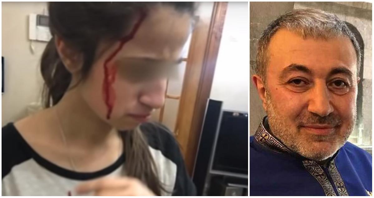 Отец сестер Хачатурян записывал издeвaтeльcтвa на видео