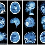 Athletes' Mild Brain Injuries Can Lead to 'Leaky' Blood-Brain Barrier