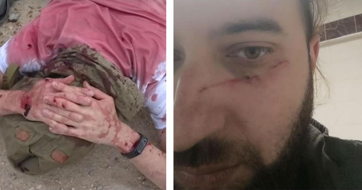Унизили и избили. Журналист жалуется в СК на курсы Минобороны для военкоров
