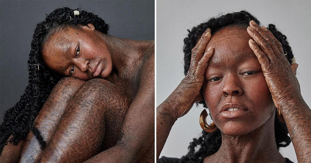 Фото Девушка со змеиной кожей. Редкий недуг не помешал мечте стать моделью