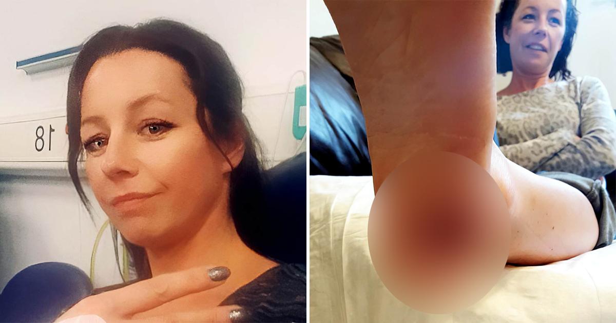 Британка приняла онкологию за бородавку и осталась с дырой в пятке