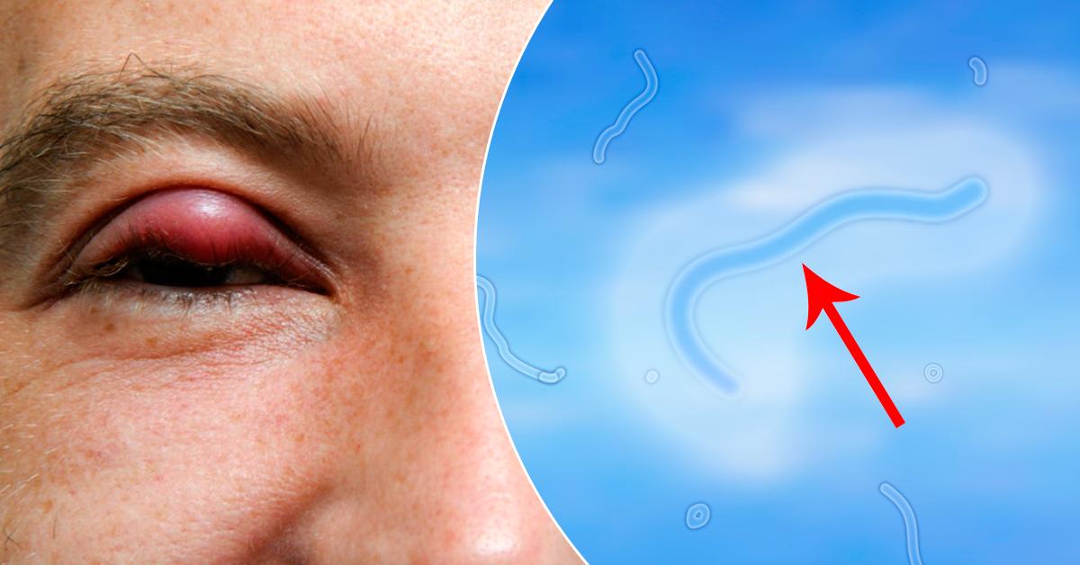 Красные пятна под глазами: причины и симптомы