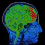 Old Brain Injury May be Cause of Dementia, Not Alzheimer's