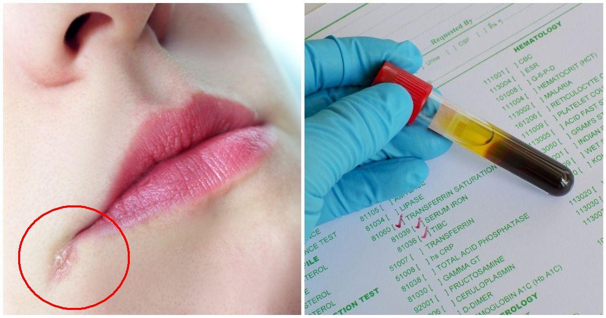 Заеды в уголках рта. Причины и лечение