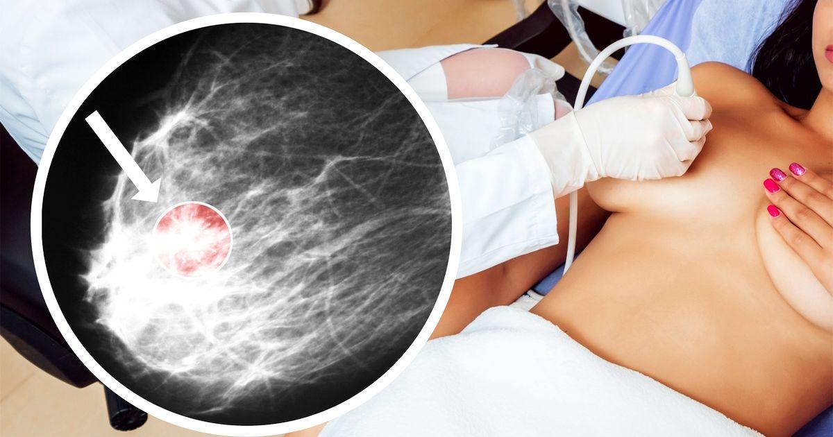 Фото Рак молочной железы. Симптомы, диагностика, профилактика