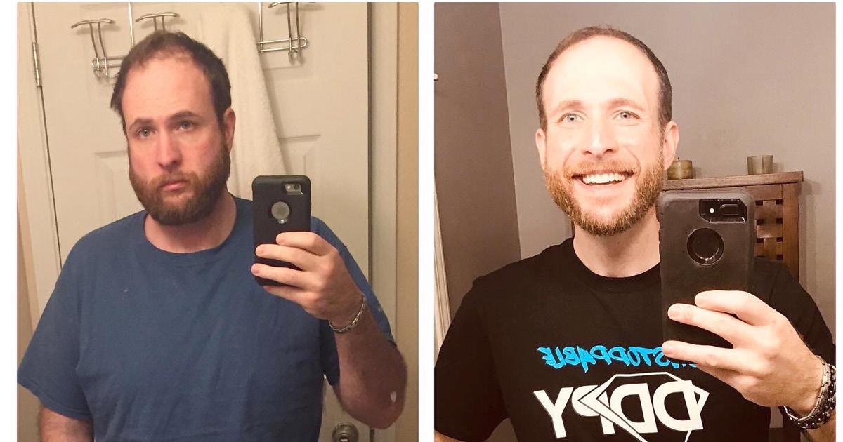 Фото Парень показал, как изменился за год после отказа от алкоголя