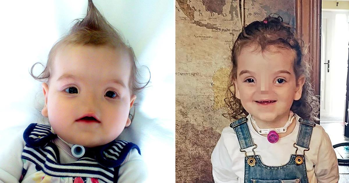 Девочка родилась без носа. Как она изменилась после нескольких операций?