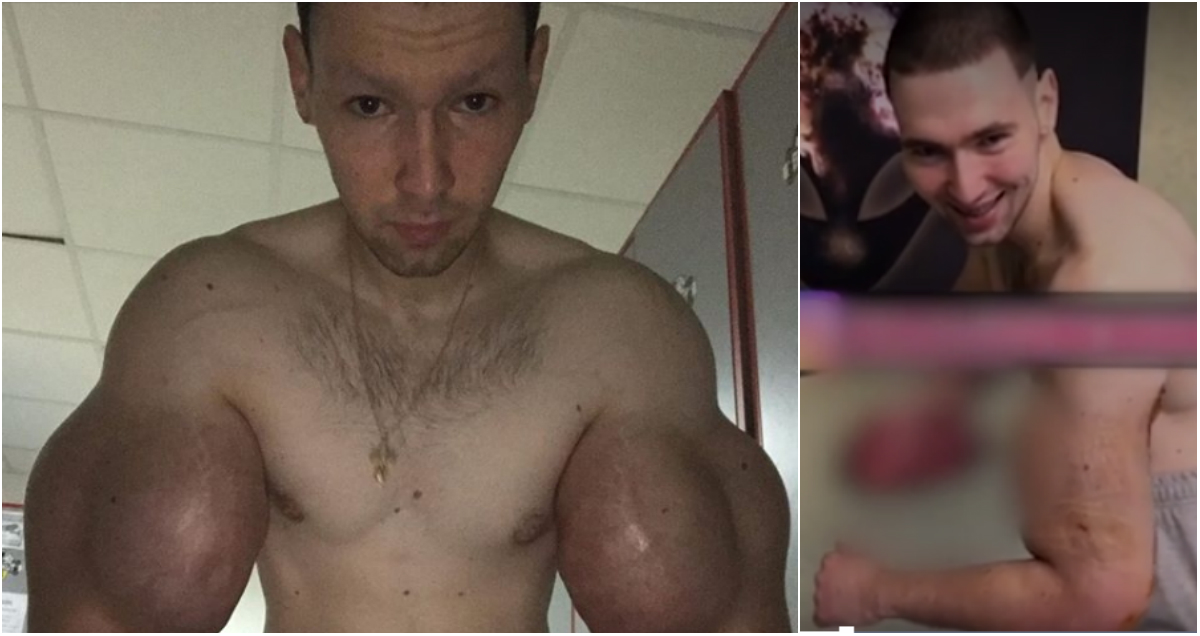 Базуки удалили. Терешин показал свои руки после операции