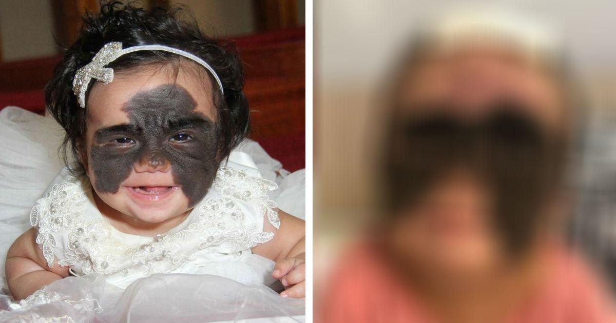 Мама «девочки-бабочки» из США показала итог операции, проведенной в РФ