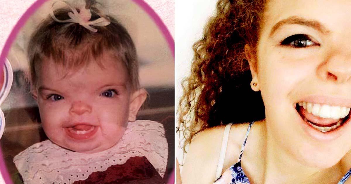 Девочка родилась с редким синдромом. Как она выглядит после всех операций?