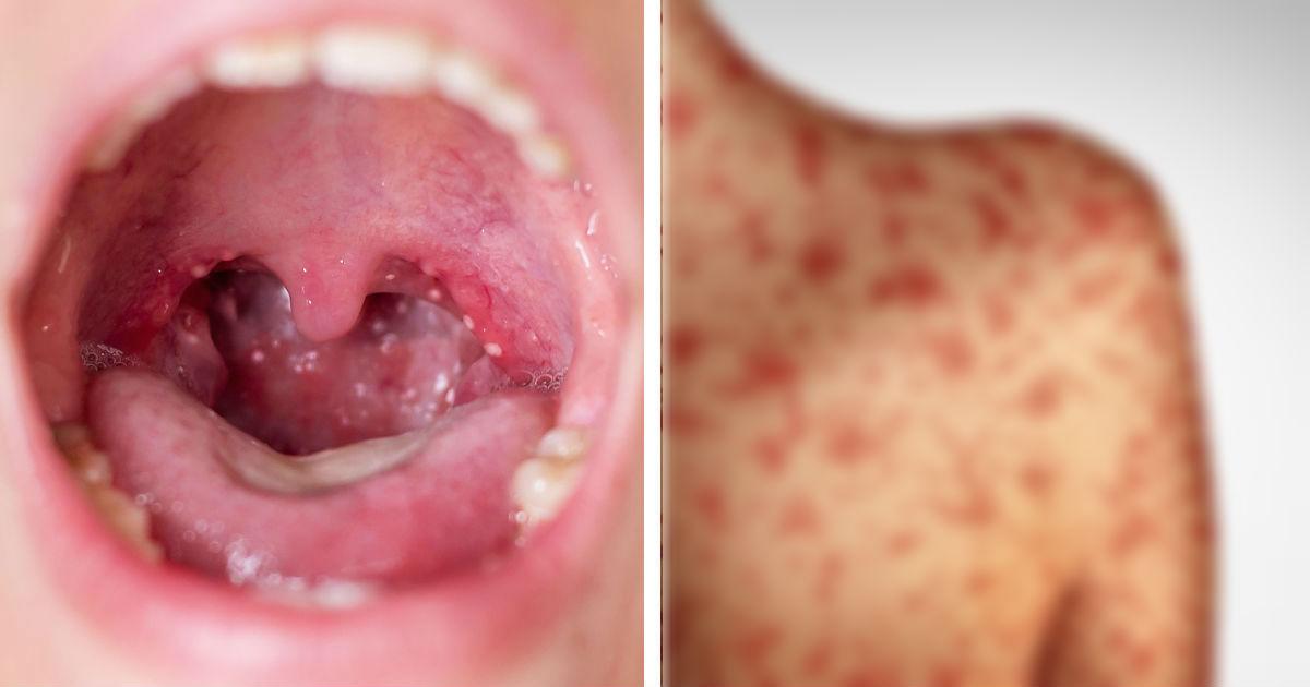 Корь: симптомы вируса, фото, лечение и прививка