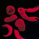 Two New Drugs Help Relieve Sickle-Cell Disease. But Who Will Pay?