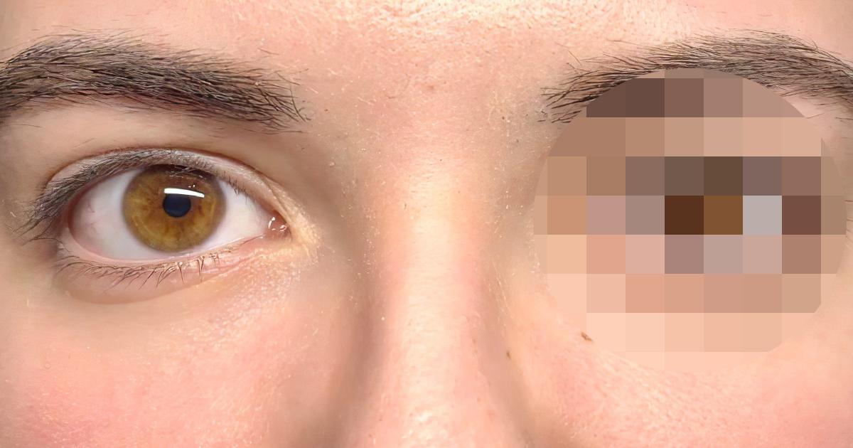 Девушка годами скрывала одну особенность под челкой (ВИДЕО)