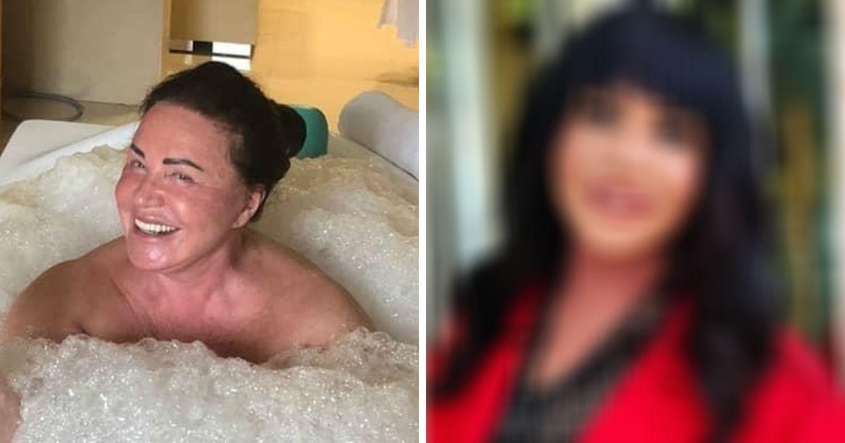 Диагноз по фото: Миро обнаружила у Бабкиной «фотошоп головного мозга»