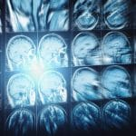 MRI Study Finds Brain Structure Differences in Teens with Mental Health Issues