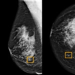 A.I. Is Learning to Read Mammograms