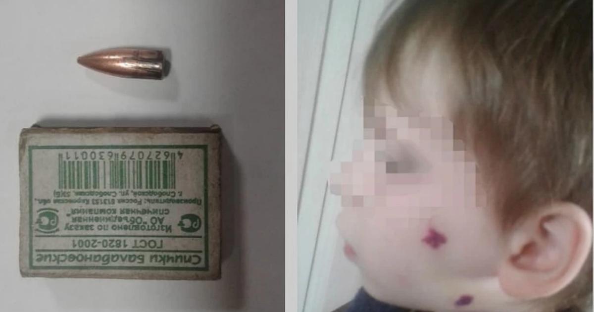 Фото Неизвестный попал в лицо 6-летнему ребенку во время празднования
