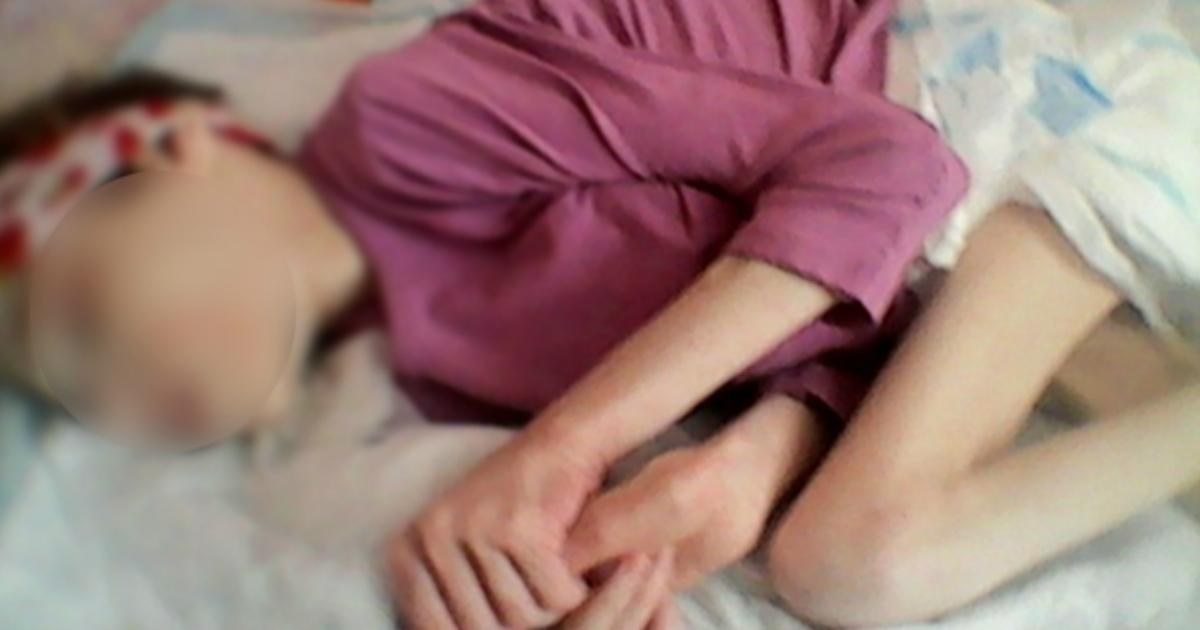 20-летнюю девушку из Челябинска с весом 18 кг забрали из реабилитационного центра