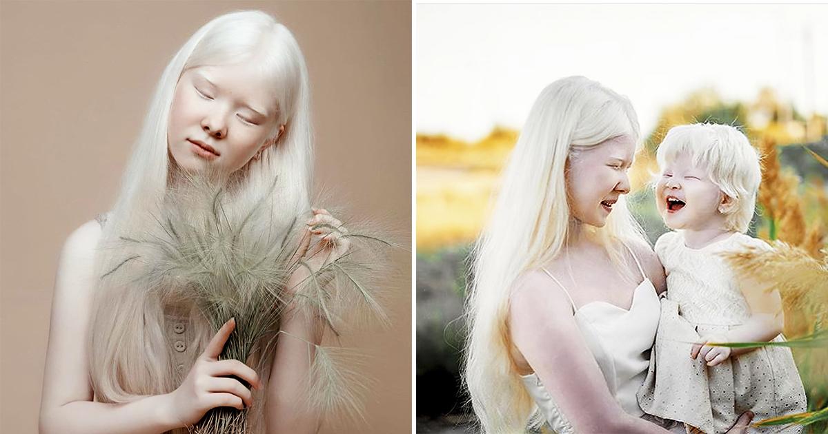 Казахстанское чудо. Сестры-альбиносы покоряют модельный мир