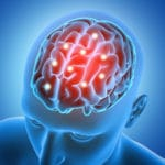 Study Probes Interaction of Genetics and Neural Wiring in ADHD