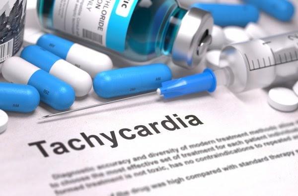 Тахикардия: симптомы и лечение, синусовая и пароксизмальная тахикардия