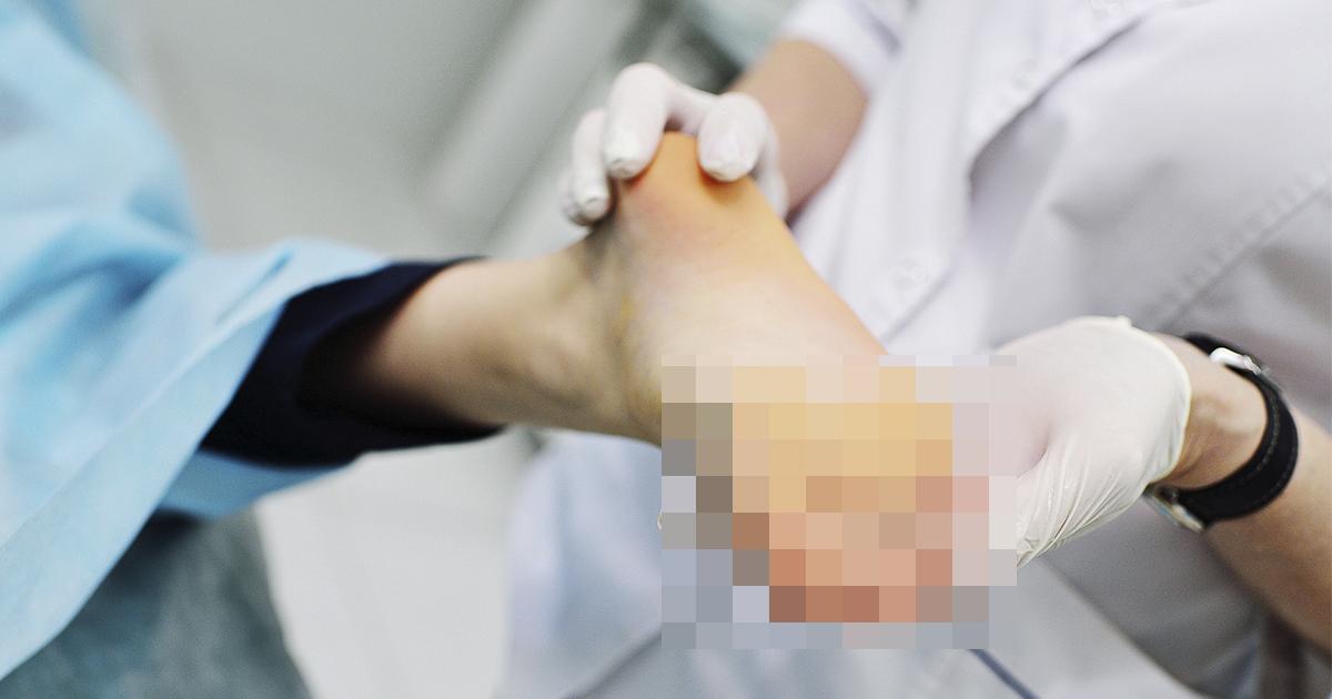 Осмотрите ноги. Европейские врачи назвали необычный симптом коронавируса