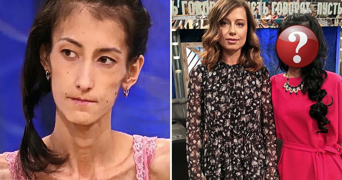 21-килограммовая девушка из «Пусть говорят». Победила ли она анорексию?