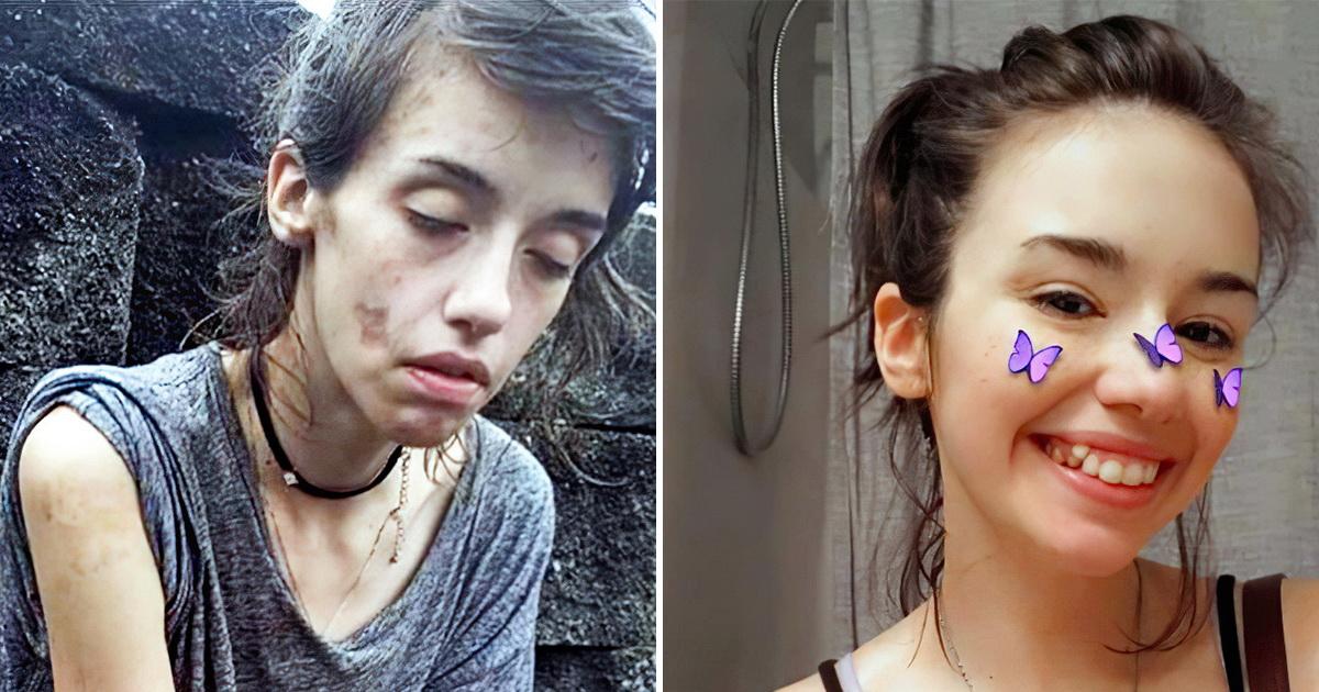 Девушка бросила наркотики и поразила пользователей своим преображением