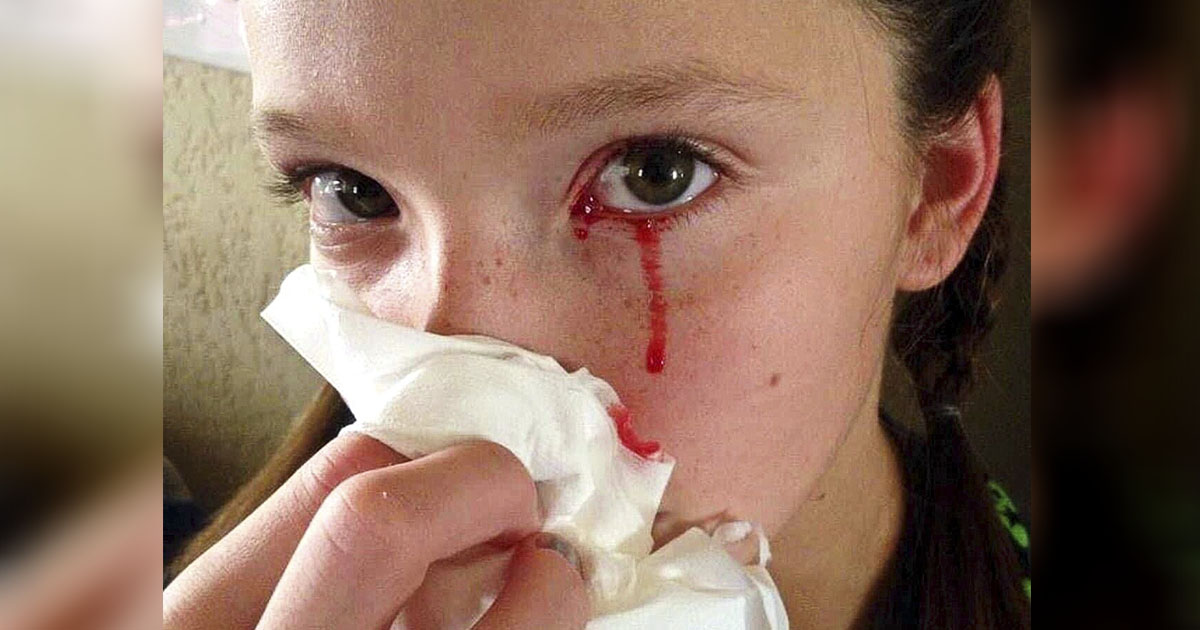 Плачет кровью. 11-летняя девочка страдает от крайне редкой болезни