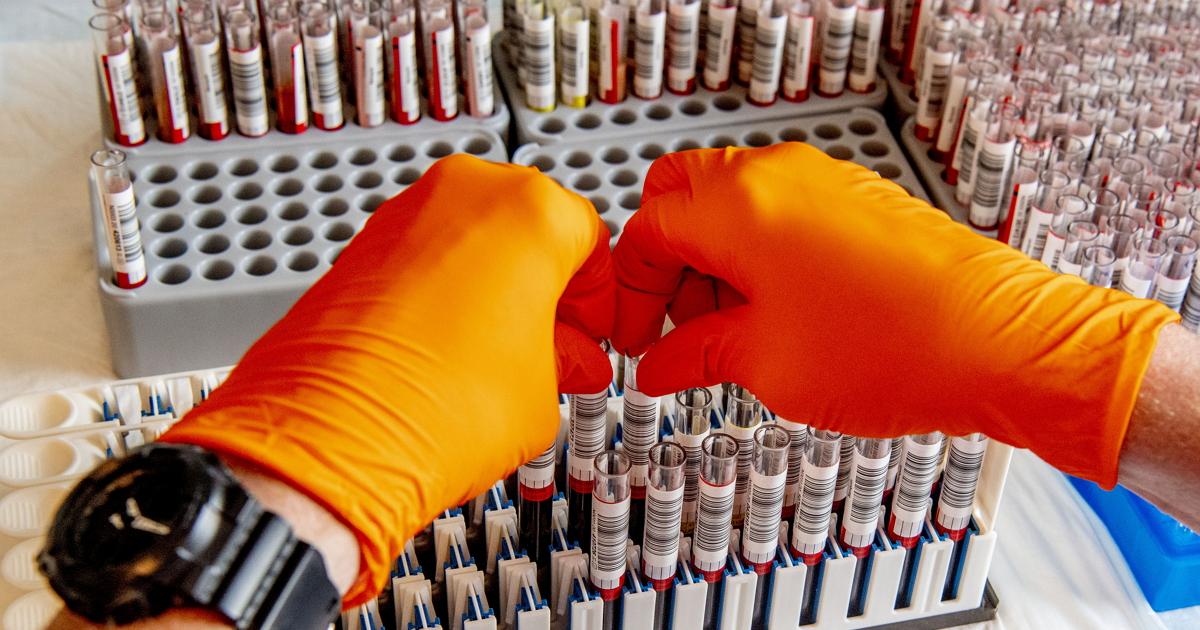 Коронавирус и группа крови - для кого он опаснее? Ответили ученые из США